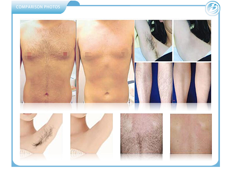 Laser Treatment before and after.jpg