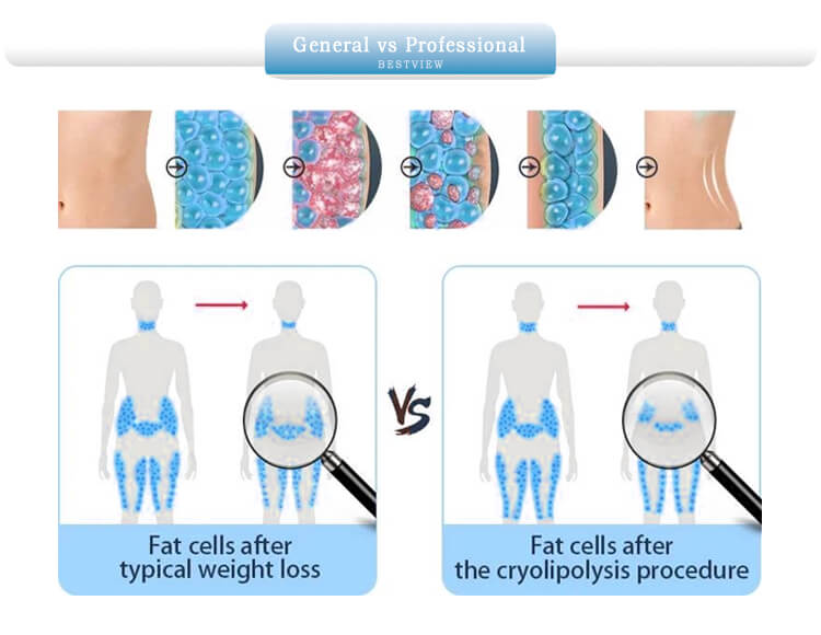 Fat cells about typical fat reduction vs cryolipolysis