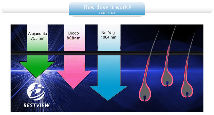 How does triple wavelength diode laser machine work