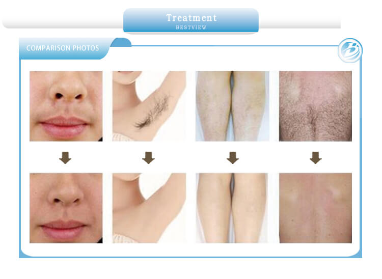 Treatment hair removal before and after