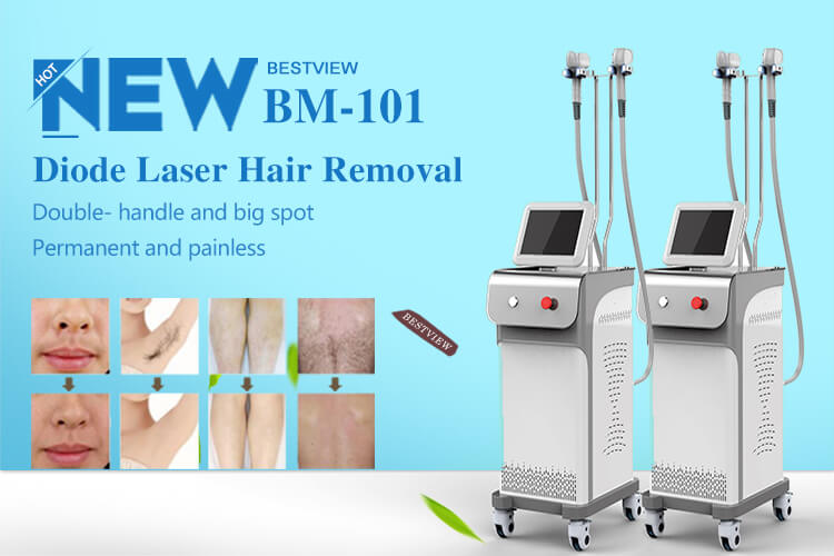 laser hair removal machine suppliers