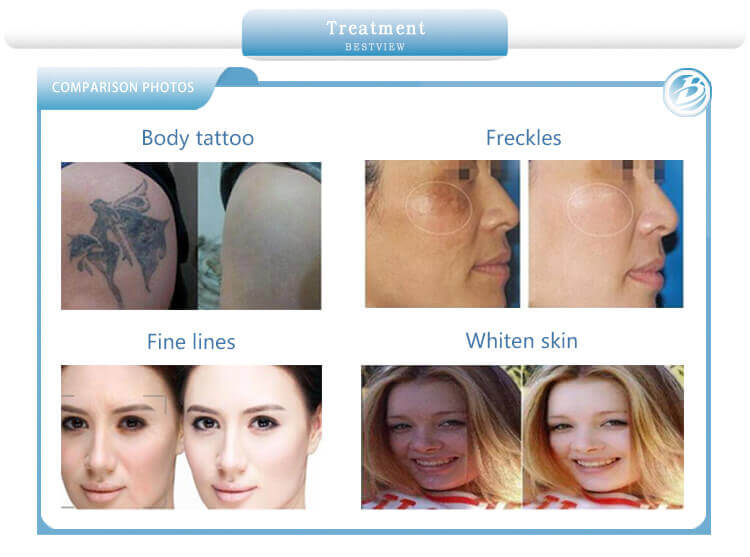 Picosure laser treatment before and after